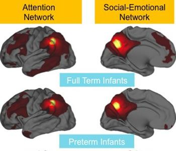 Impaired functional connectivity in preterm brains