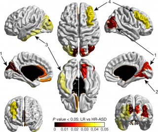 MRI algorithm to predict which babies at high risk of developing autism